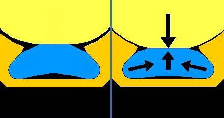 Fig.04 riabilitazione implantare mandibola edentula