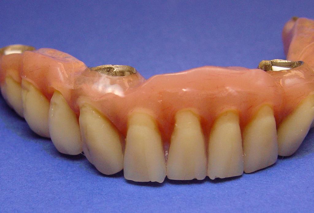 Fig.10 riabilitazione implantare mandibola edentula