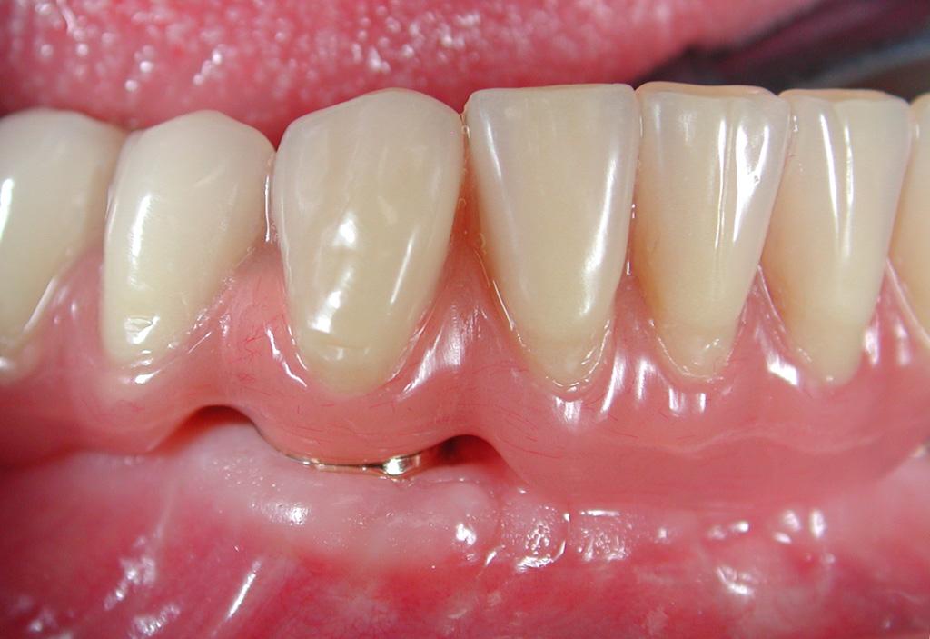Fig.11 riabilitazione implantare mandibola edentula