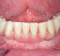 Riabilitazione implantare mandibola edentula