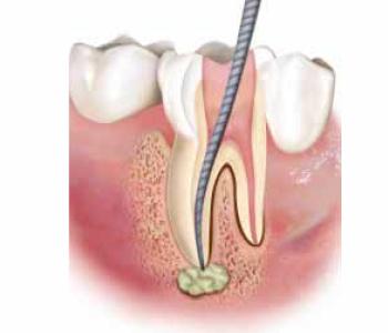 Trattamenti: Endodonzia