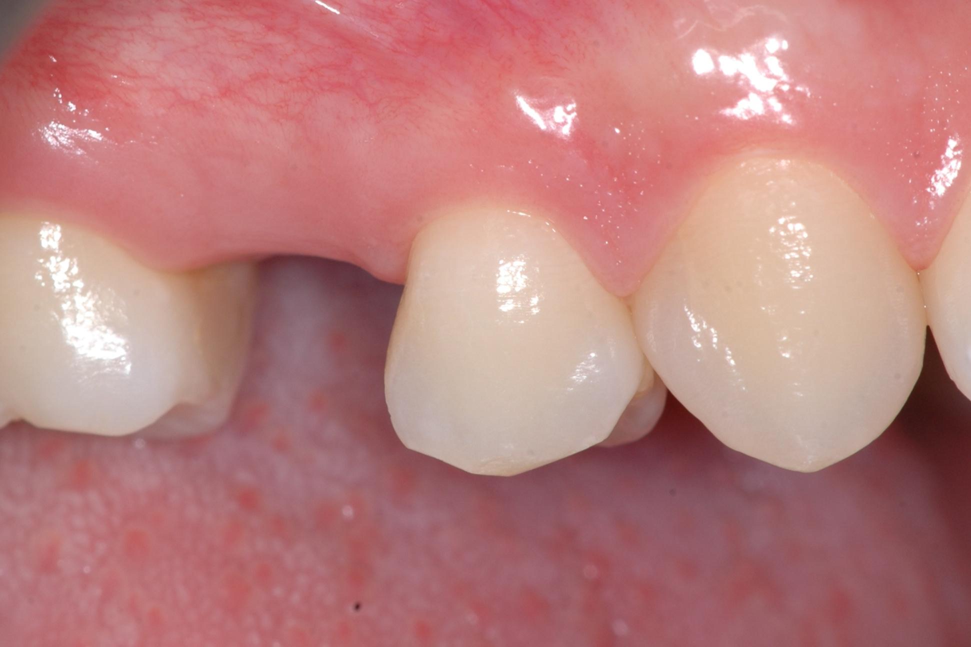 fig1 riabilitazione implantare premolare superiore