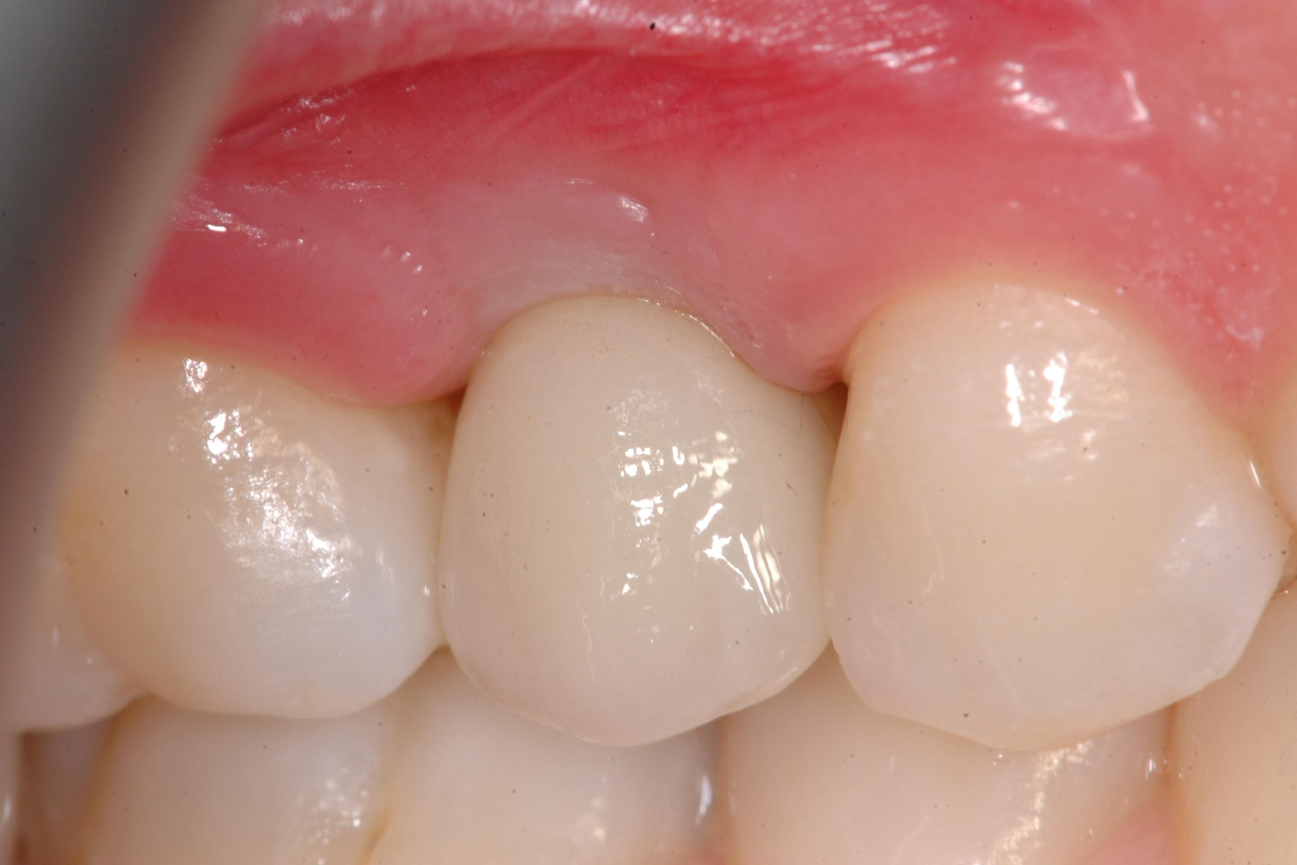fig3 riabilitazione implantare premolare superiore