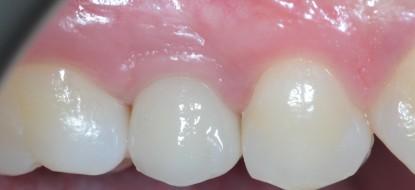 Riabilitazione implantare premolare superiore