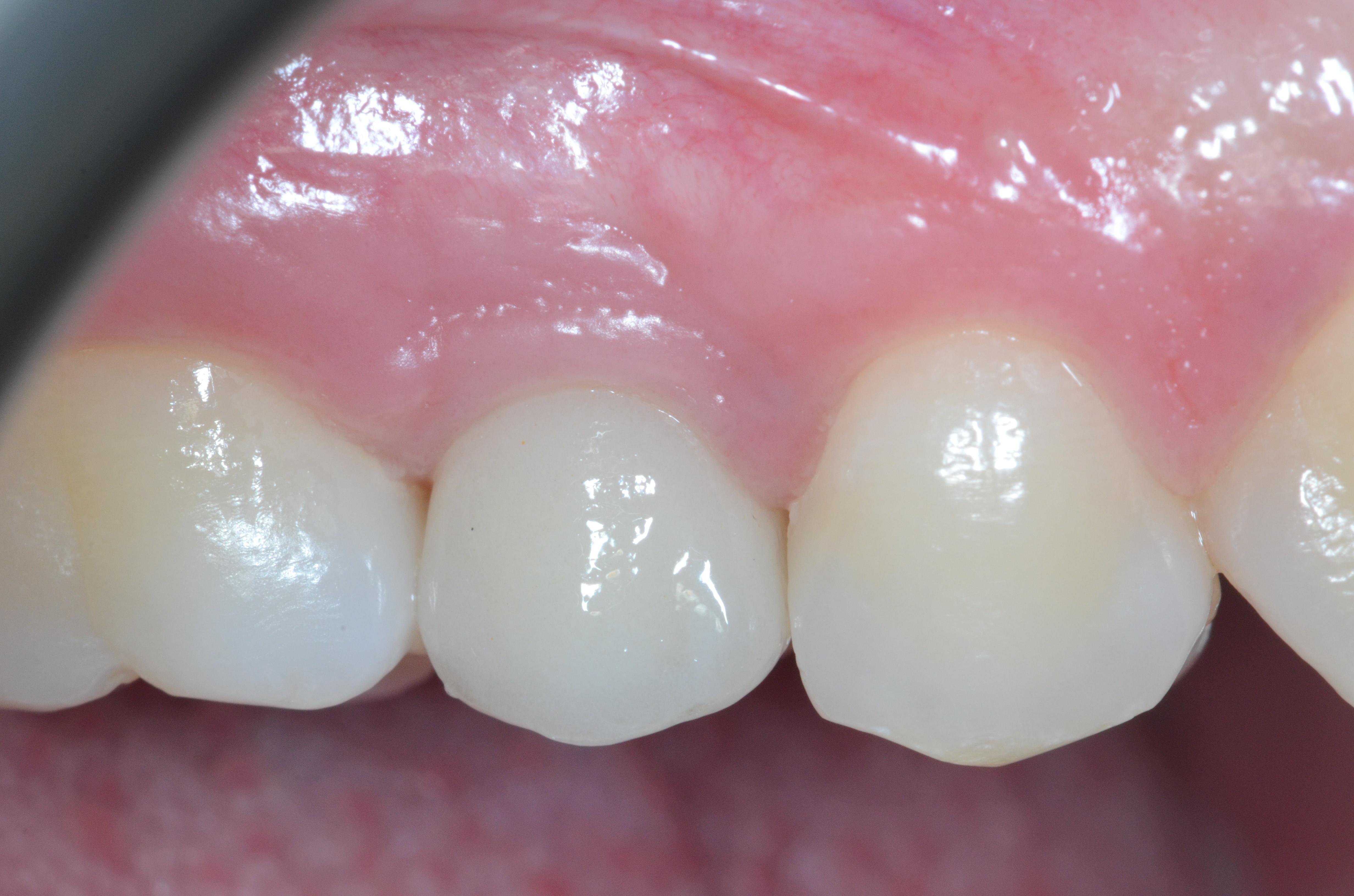 fig5 riabilitazione implantare premolare superiore