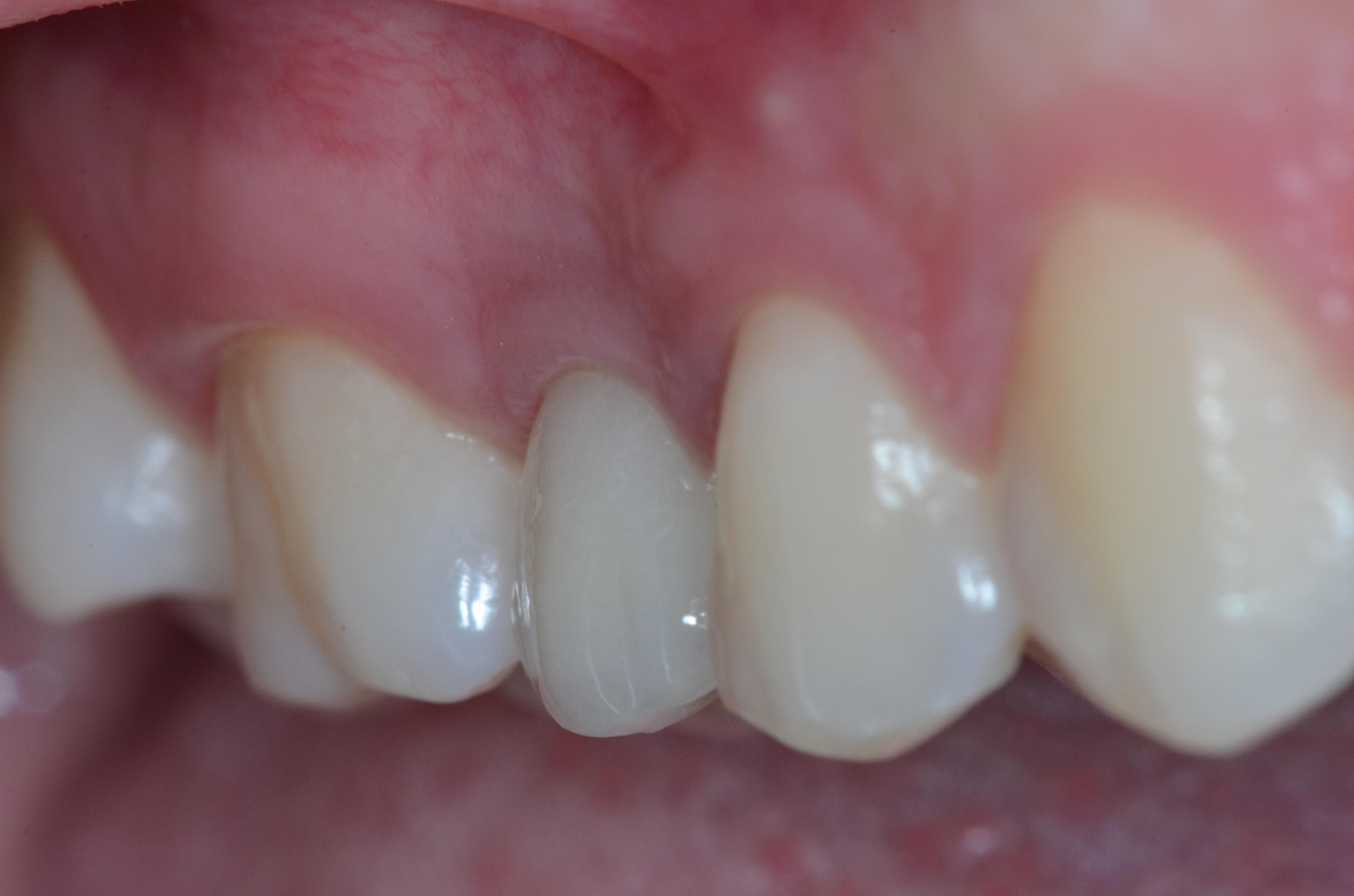 fig6 riabilitazione implantare premolare superiore