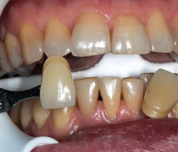 Prima della cura, per ritrovare il bianco naturale dei denti.